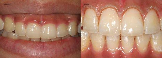 Toothwear & Discolouration