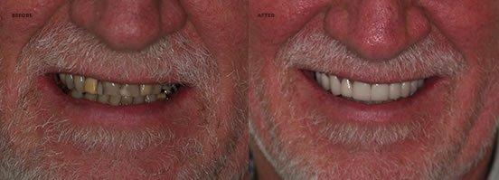 Laser Gum Lifting